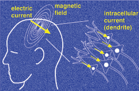 283px-Magnetoencephalography_svg